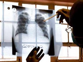 Röntgenbild einer Lunge. Tuberkulose ist eine Infektionskrankheit, die durch Bakterien hervorgerufen wird, die die Lunge angreifen.
