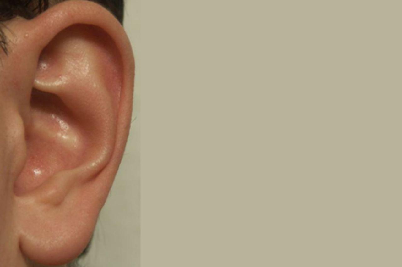 Sprache kann man auch spüren: Die Haut hört mit - n-tv.de