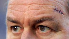 Ungewöhnliche Erinnerungsstücke: Narben - besondere Ersatzhaut