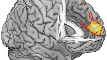 Der dorsomediale Präfrontalkortex (dmPFC) – helle Markierung – liegt im Stirnbereich des Gehirns.