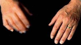 Viele Parkinson-Patienten leiden unter einem Zittern (Tremor) im Ruhezustand. Dieser tritt typischerweise einseitig auf.