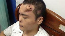 Plastische Chirurgie: Chinese hat Nase auf der Stirn