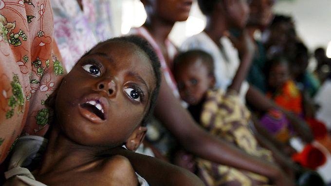Ein unterernährtes Kind in Malawi: In Afrika fehlt es an fast allem, was in Europa selbstverständlich ist.