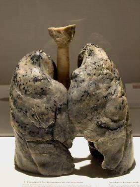 Das Präparat einer Raucherlunge als Ausstellungsstück.