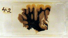 Nun Teil einer Ausstellung: kleine, dünne Scheibchen von Einsteins Gehirn auf Objektträgern.