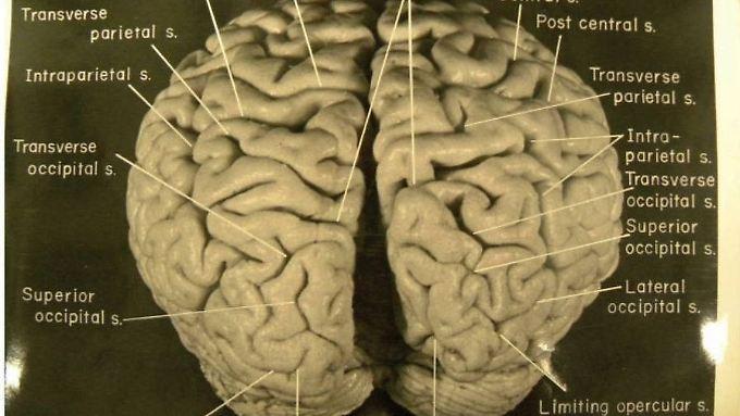Das Gehirn des großen Physikers, als es noch ganz war. Kurze Zeit später zerteilte es Thomas Harvey in 240 Würfel.