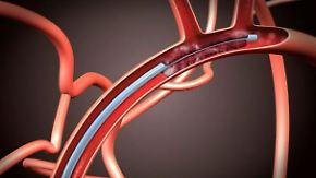 Jede Minute zählt: Neue Katheter-Methode soll bei Schlaganfall helfen