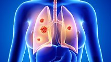 Bald häufiger als durch Brustkrebs: Mehr Frauen sterben durchs Rauchen