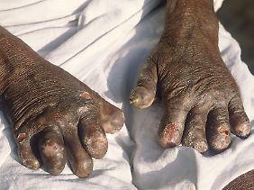 Lepra an sich ist nicht schmerzhaft, doch über die Wunden kann es zu weiteren lebensgefährlichen Infektionen kommen.