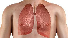 Ursachen, Symptome, Behandlung: Was ist eine Lungenembolie?