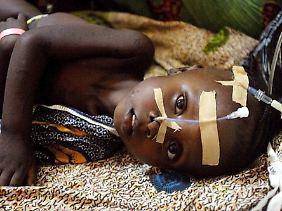 Der Hunger hat viele Gesichter: Unterernährung führt nicht nur zu körperlichen Leiden, sondern kann auch geistige Behinderungen und Traumata hervorrufen.