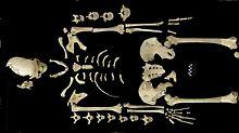 Fundsache, Nr. 1302: Leukämie an 7000 Jahre altem Skelett