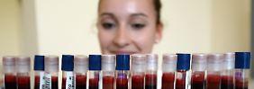 Wirksames Mittel gegen Leukämie: Die wichtigsten Fakten zur Stammzellspende