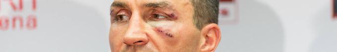 """Der Tag: 10:14 Klitschko: """"Mann, ich leide"""""""