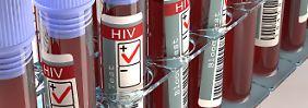 Mutationen folgen einem Muster: Auch das HI-Virus hat Schwachstellen