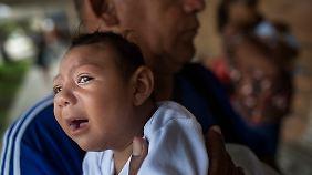 Bei an Mikrozephalie erkrankten Babys ist der Kopfumfang ungewöhnlich klein, geistige Behinderungen sind die Folge.