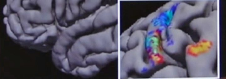 Neuer Therapieansatz: Magnetimpulse befreien Kokain-Abhängige von ihrer Sucht