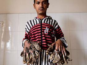 Der 26-jährige Familienvater leidet an einer seltenen Hautkrankheit, die zu warzenübersäter Haut und schuppenartigen Missbildungen an den Händen und Füßen führt.