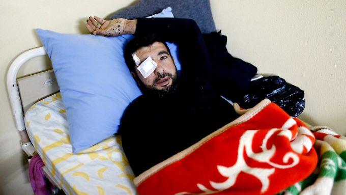Dieser syrische Flüchtling wird in einem Krankenhaus im türkischen Kilis behandelt.