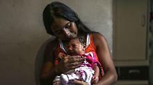 Baby mit Mikrozephalie: In Brasilien stieg die Zahl der bestätigten Fälle bereits auf 1113.