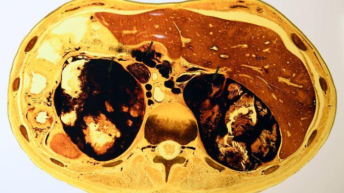 Das Modell zeigt einen Querschnitt durch den Bauchraum mit Hautkrebs-Metastasen.