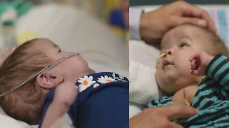 Am Herzen zusammengewachsen: 3D-Drucker rettet siamesischen Zwillingen das Leben