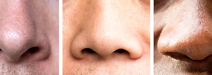 Nasen von Männern europäischer, asiatischer und afrikanischer Herkunft (v.l.).