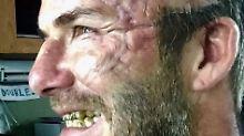 Das sieht schmerzhaft aus!: David Beckham präsentiert fiese Narbe