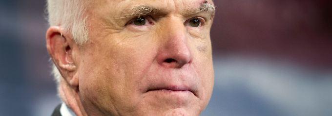 Kampf gegen Gehirntumor: McCain verpasst Steierpläne-Abstimmung