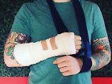 Sänger bricht sich den Arm: Auto holt Ed Sheeran vom Fahrrad
