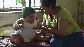 Lebensgefährliches Übergewicht: Einjähriger bringt 28 Kilo auf die Waage