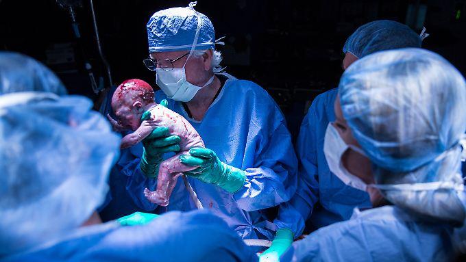 Ärzte der Baylor-Universität entbinden einen Jungen nach einer Gebärmutter-Transplantation.
