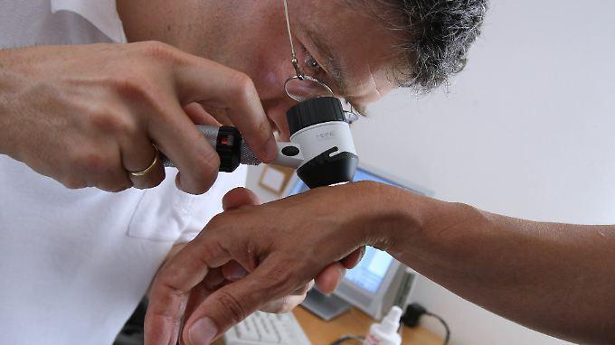 Zu den 18 Krebsarten, die von den Forschern ausgewertet wurden, gehört auch Hautkrebs.