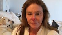 Basalzellkarzinom auf der Nase: Caitlyn Jenner ließ sich Tumor entfernen