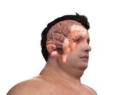 So ähnlich wie bei Depressionen: Übergewicht entsteht durch Störung im Hirn