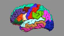 Frühe, eindeutigere Diagnose: Psychosen zeigen sich in Hirnwindungen