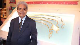 Shridhar Chillals Hand verformte sich durch das Gewicht der Nägel.