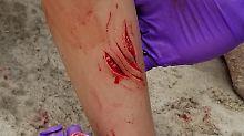 Zwei Teenager angegriffen: Hai schnappt in New York zu