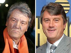 Das Bild zeigt Wiktor Juschtschenko vor (r) und nach der Vergiftung mit  TCDD.