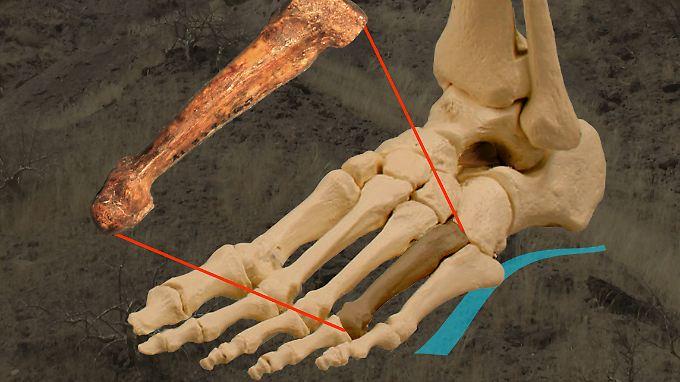 Die Illustration zeigt, an welcher Stelle sich der Knochen im Fuß befand.