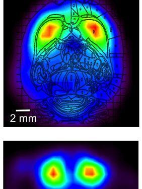 Die Vorgänge im Gehirn werden in Ruhephasen und bei Bewegung des Tieres erfasst und farbig dargestellt.