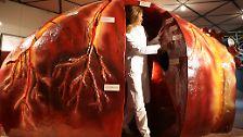 Zu wenige Spender weltweit: Leben retten durch Organtransplantation