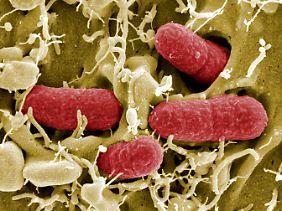 Diese elektronenmikroskopische Aufnahme des Helmholtz-Zentrums für Infektionsforschung zeigt EHEC-Bakterien.