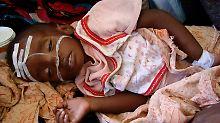 Ein unterernährtes Kind wird in einer Klinik in Mogadischu versorgt.
