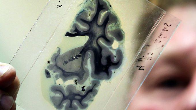 Forschungsleiter Jens Pahnke zeigt den Schnitt eines menschlichen Gehirns, der unter dem Mikroskop untersucht werden soll.