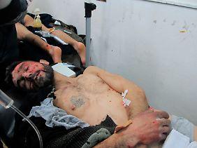 Fotos, die verwundete Oppositionelle aus Homs zeigen sollen, erreichen die westlichen Medien.