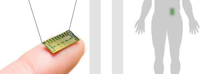 Darstellung eines Microchips, wie er jetzt bei Osteoporose-Patientinnen getestet wurde.