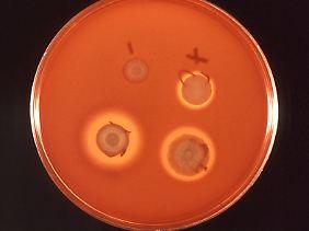 Kolonien von Serratia marcescens Darm-Bakterien wachsen in einer Petrischale.