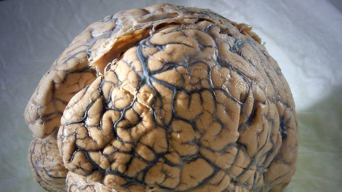 Auch das Geburtsgewicht entscheidet über die Größe des Gehirns.