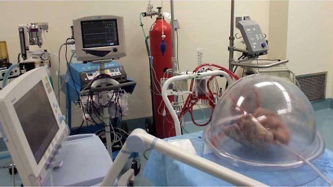 Spenderlungen sind selten. Viele Patienten sterben, bevor sie eine Transplantation bekommen.